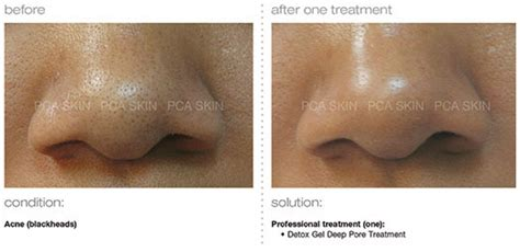 Laser Vein Removal Clinic Orange County