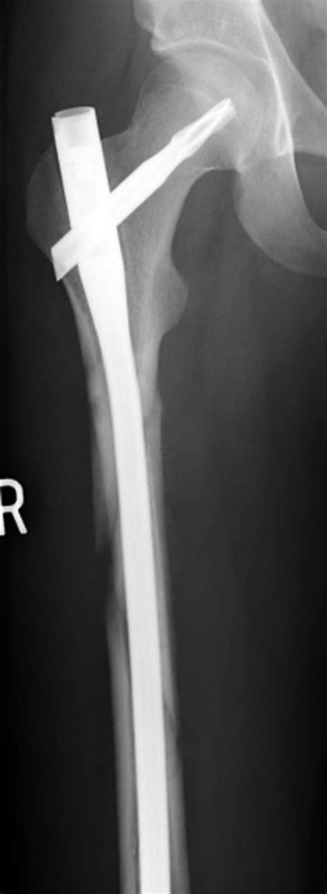 Medical Apparatus Imaging Guide: fracture fixation